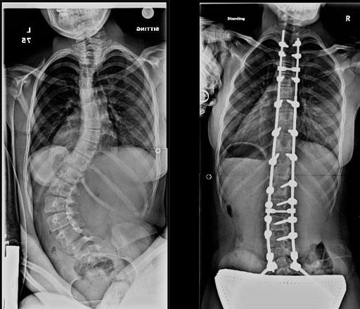 Spinal Cord Injuries Baton Rouge David G Ferachi Spinal